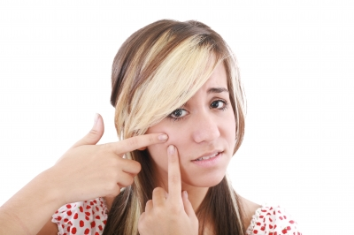 Acne Smack down– The 411 on Acne and How to Prevent It